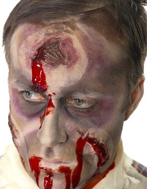 Bullet Head Wound Scar