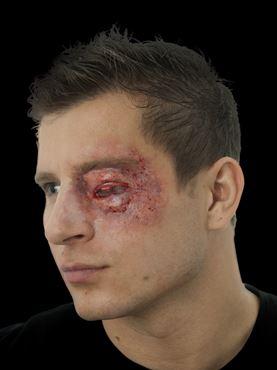 Swollen Eye Latex Appliance