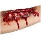 Open Wound Scar (37173)